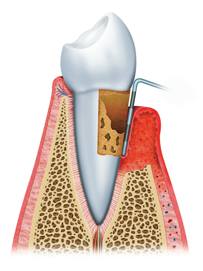 Stages of Gum Disease Ft Walton Beach, FL